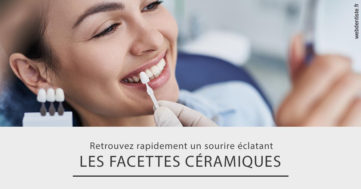 https://www.cabinetdentairedustade.fr/Les facettes céramiques 2