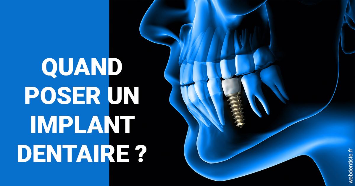 https://www.cabinetdentairedustade.fr/Les implants 1